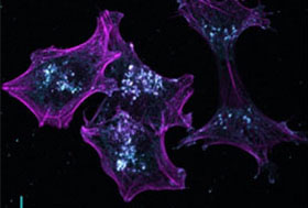Melanoma cells 2